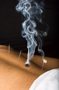 Akupunktur in Jena - Dr. med. Birgit Neumann